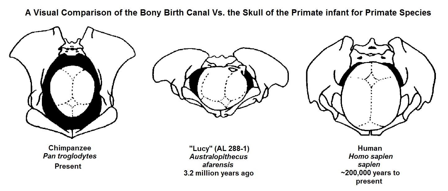 Archivo:A Visual Comparison of the Pelvis and Bony Birth