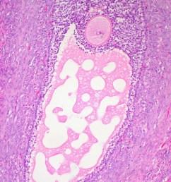 ovarian follicle [ 1035 x 1432 Pixel ]