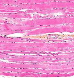structure of skeletal muscle diagram to label [ 4272 x 2848 Pixel ]