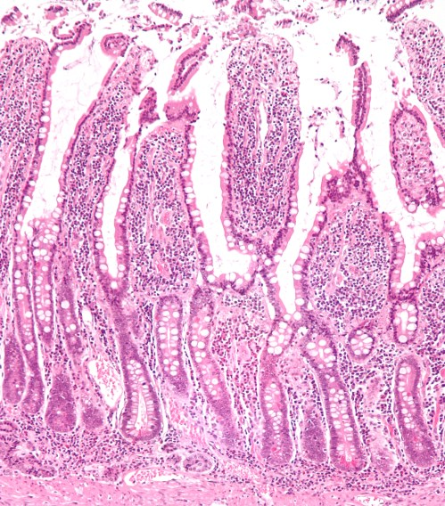 small resolution of located at http upload wikimedia org wikipedia commons 3 38 small intestine low mag jpg