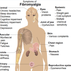 18 Tender Points Of Fibromyalgia Diagram Single Phase Asynchronous Motor Wiring Body For Sbguide Co File Symptoms Png Wikipedia Rh En Org Trigger