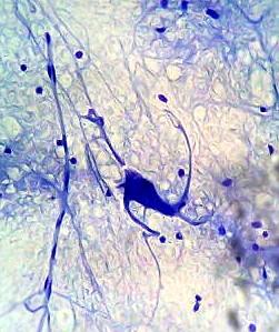 neurons through an optical microscope