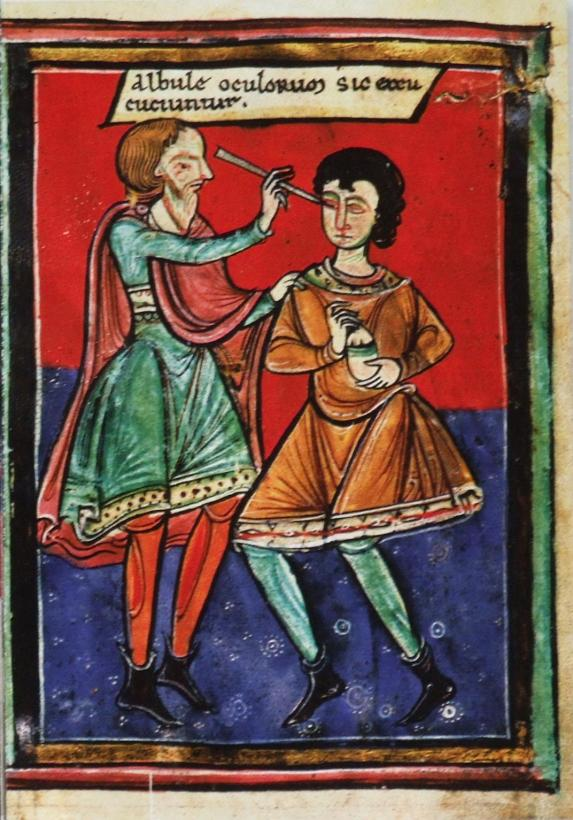 Couching Surgery for Cataract, Performed in the Year 1195 AD