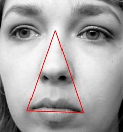 pimple diagram face [ 1200 x 1600 Pixel ]