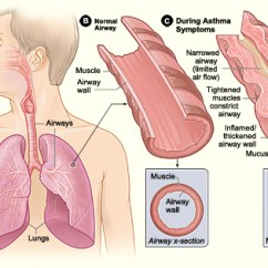 Ear Nose Throat Connection Diagram 12 Volt Wiring For Boats Pathophysiology Of Asthma - Wikipedia
