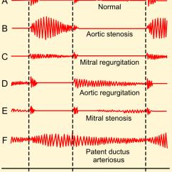 Heart Sounds Diagram Convert Ps2 Keyboard To Usb Wiring Murmur - Wikipedia