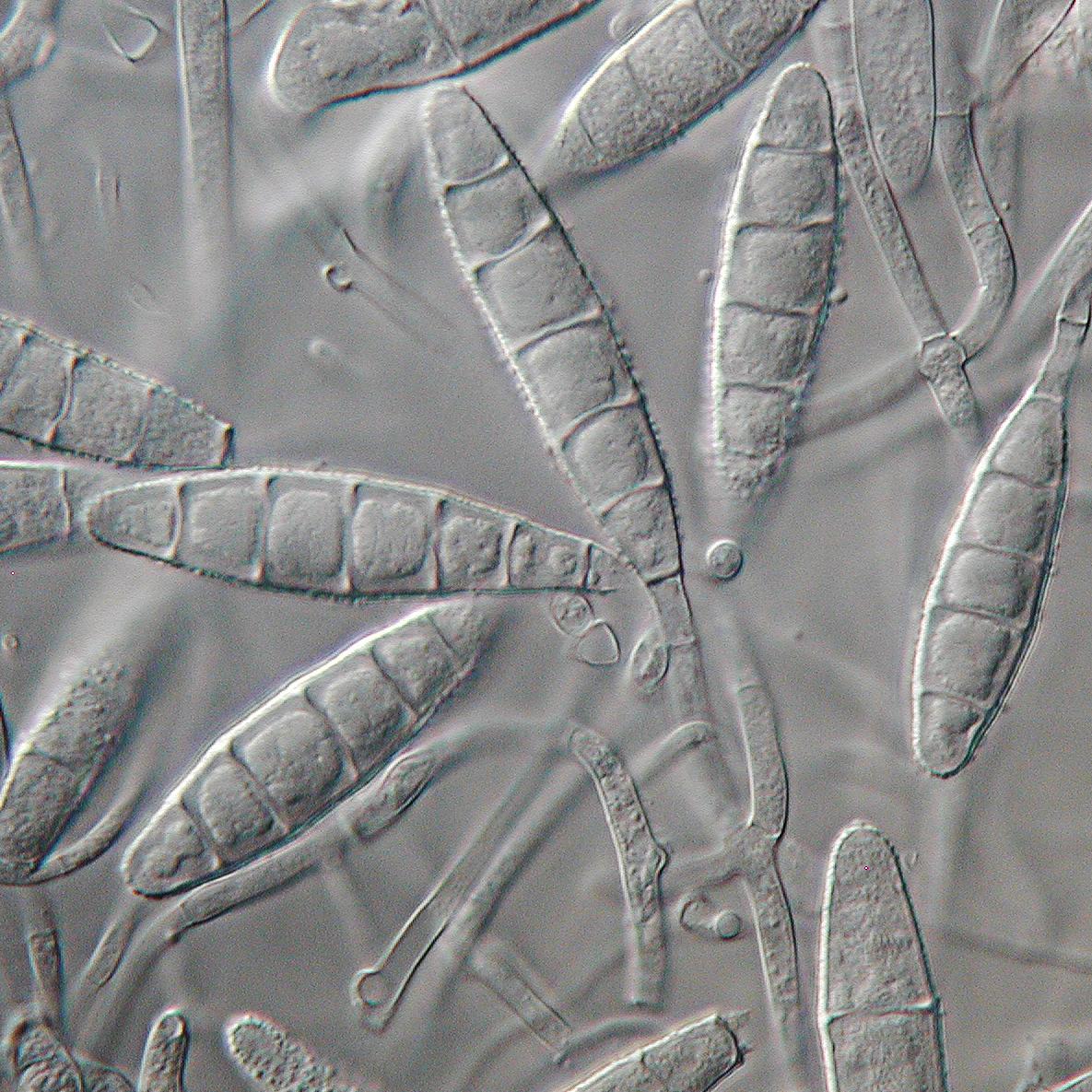 Microsporum gypseum  Wikipedia