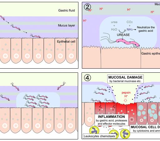 H pylori ulcer diagram en