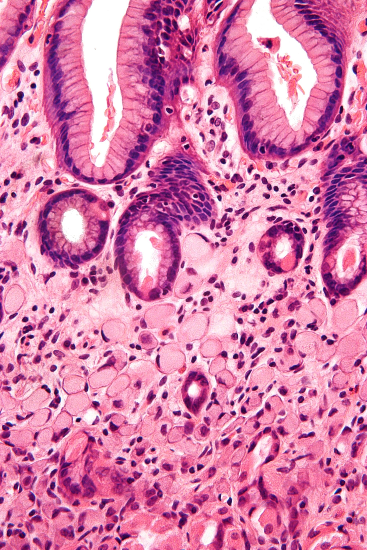 hight resolution of diagram of esophagu ring