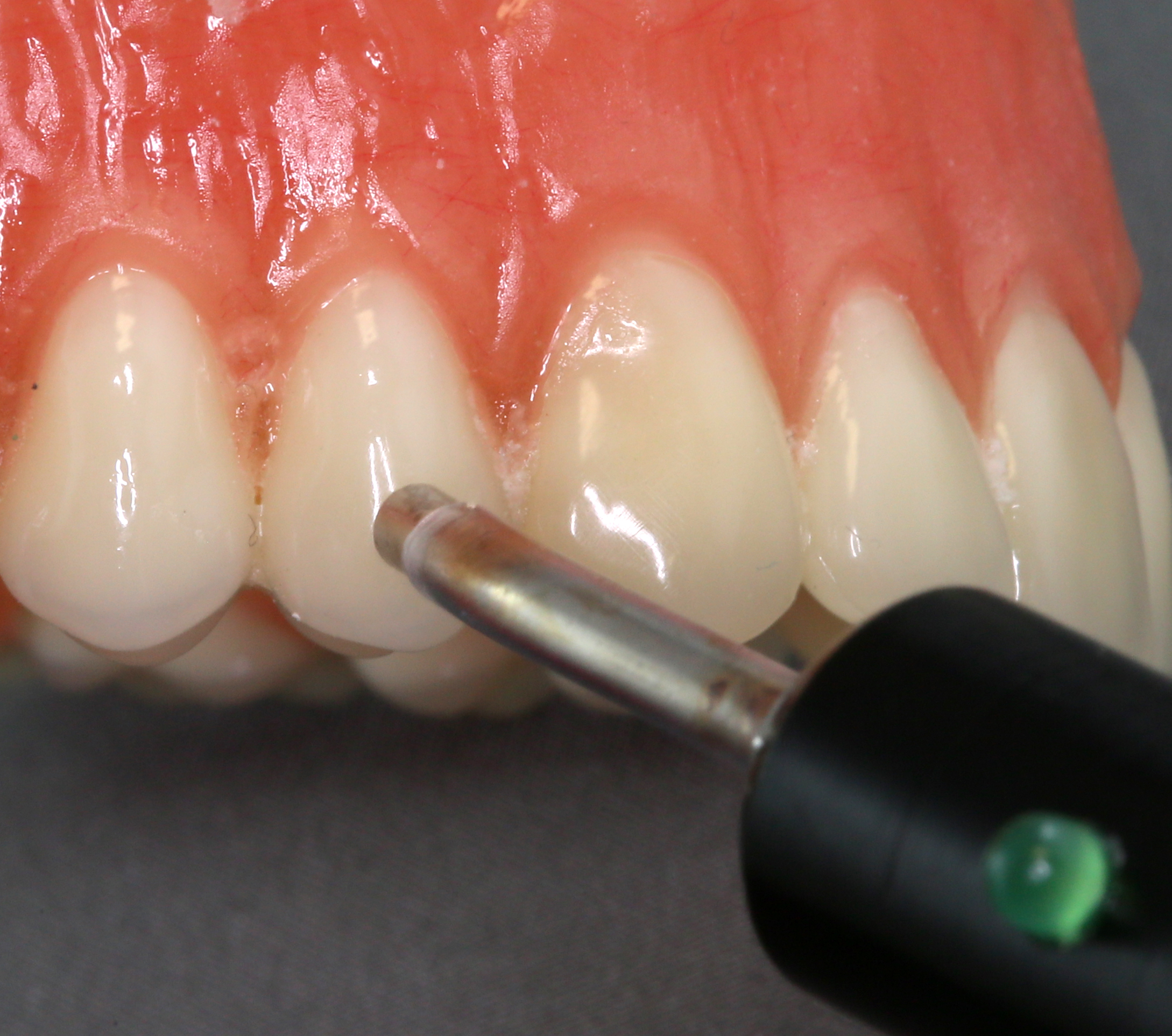 File:Electric pulp testing tooth.jpg - Wikimedia Commons