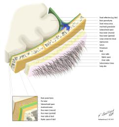 scalp lymph node diagram [ 1600 x 1600 Pixel ]