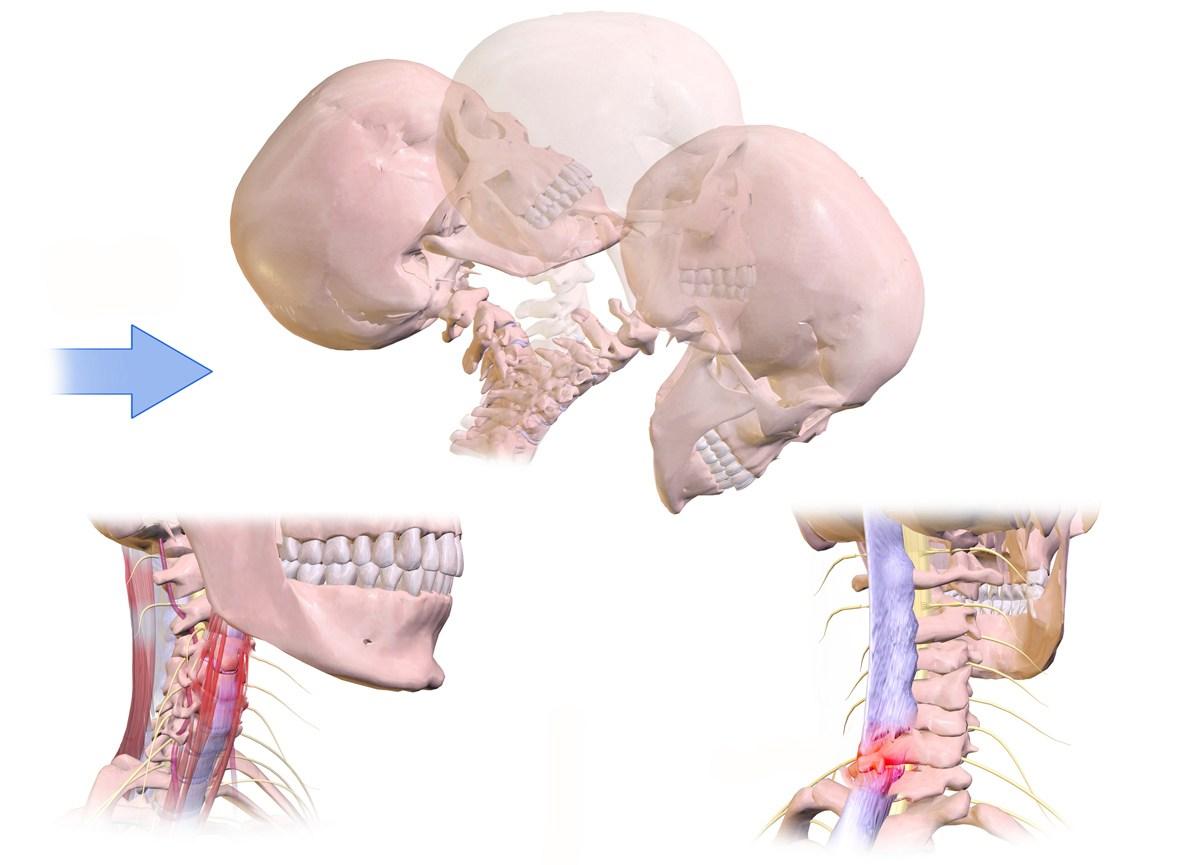 「頚椎」の画像検索結果