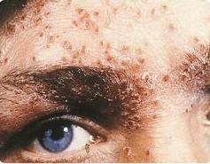 SOA-Herpes-genitalis-face1