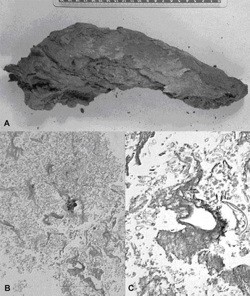 Il fegato è ben conservato (A) e l'istologia rivela tessuto epatico con fibrosi (B-C)