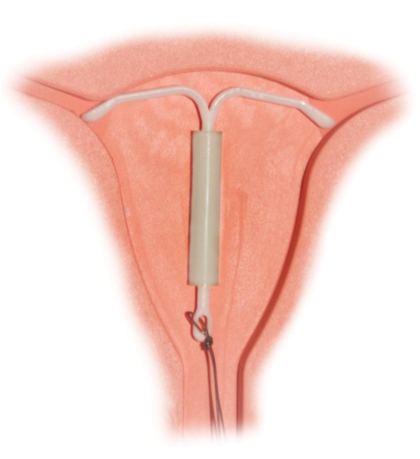 hight resolution of uteru diagram iud