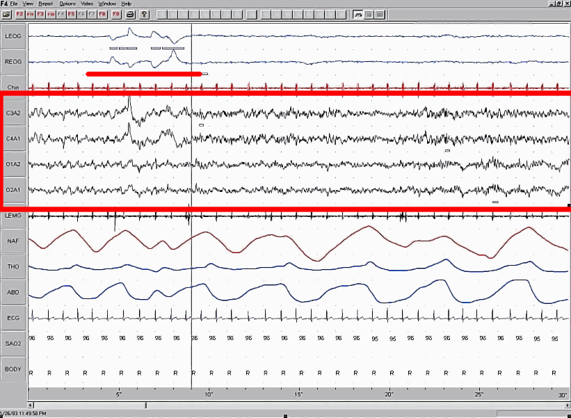 http://commons.wikimedia.org/wiki/File:Sleep_EEG_REM.png