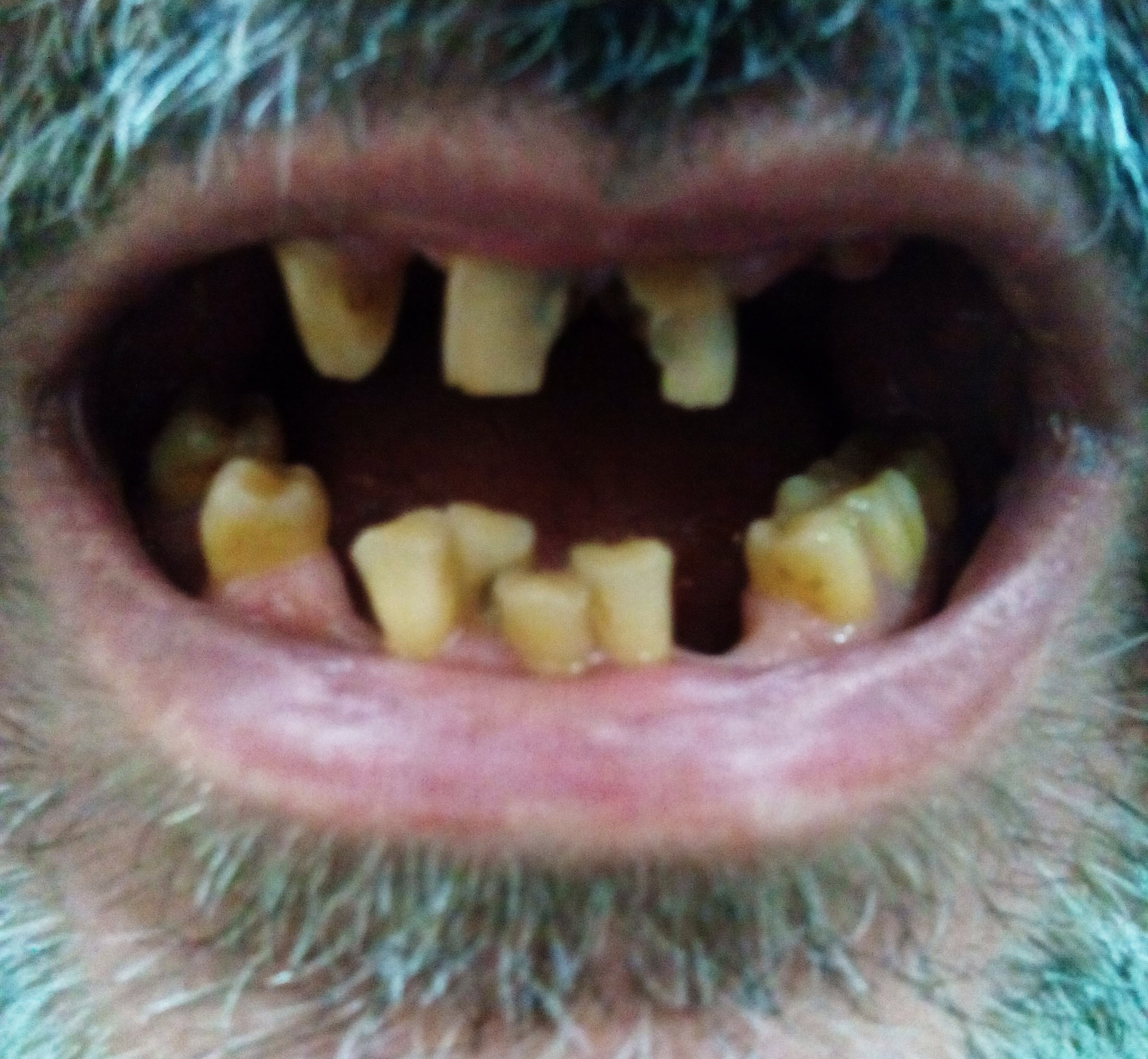 tooth discoloration wikipedia