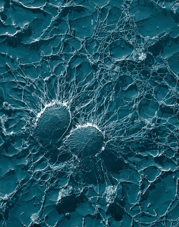 Staphylococcus aureussekundärelektronenmikroskopische Aufnahme