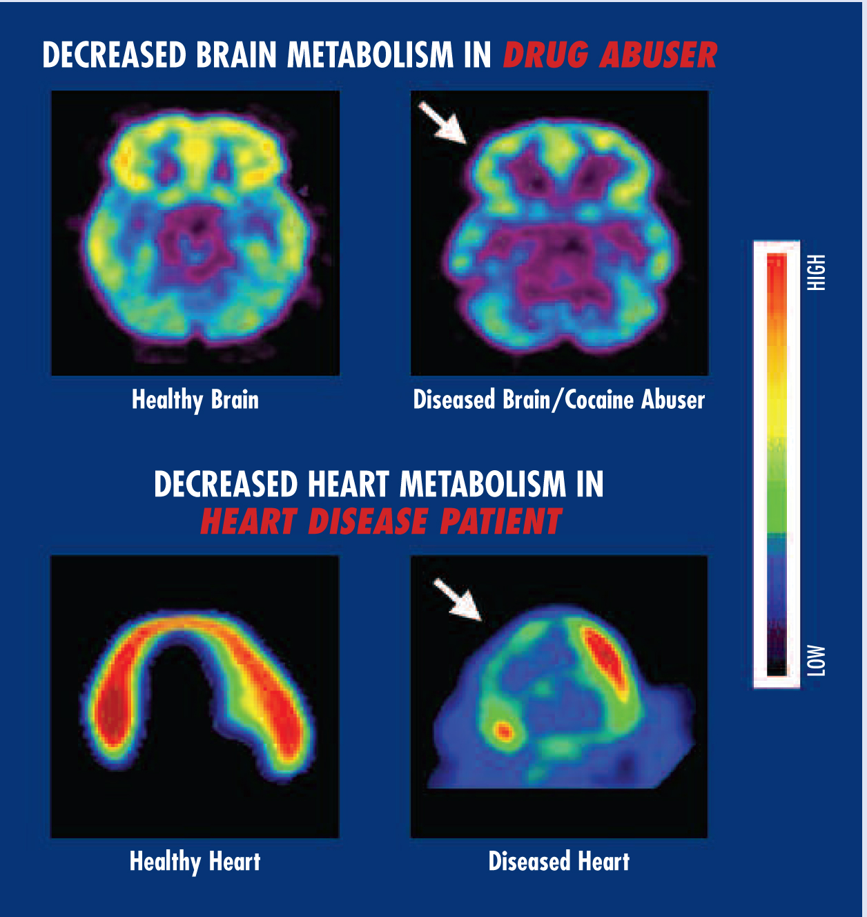 File Brain And Heart Metabolism Drugs