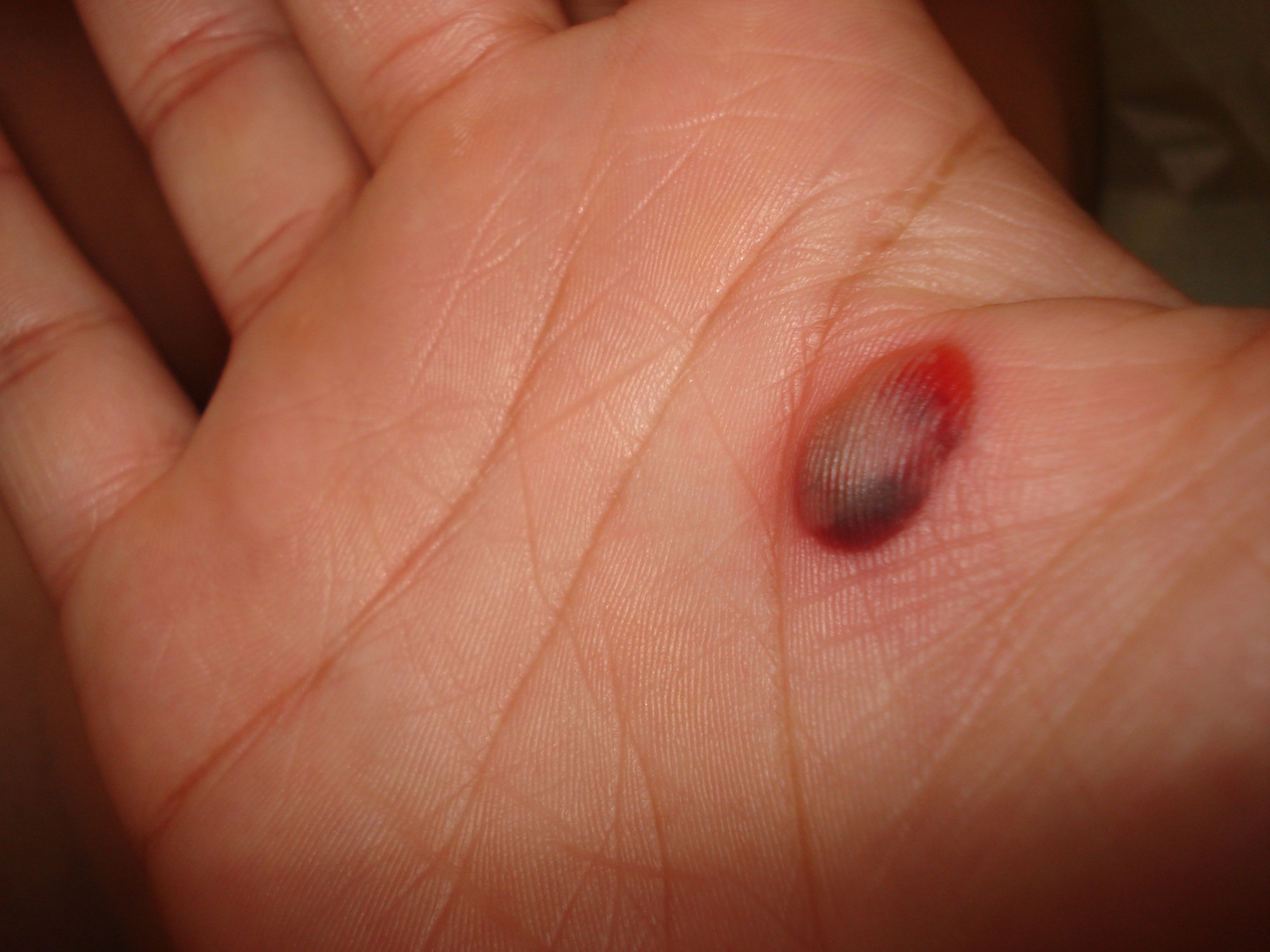 hight resolution of blood blister