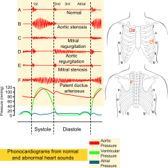 Heart Sounds Diagram Panasonic Home Theater Wiring File Phonocardiograms From Normal And Abnormal