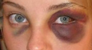 Black eye (orbicular bruise). Crop and Rotatio...