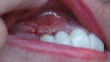 File:Swelling periodontal bone graft.jpg - Wikimedia Commons