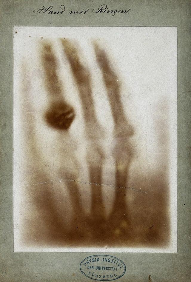 X-ray (Röntgenstrahlen) was taken by Wilhelm Röntgen of his wife Anna Bertha Ludwig's hand in 1895