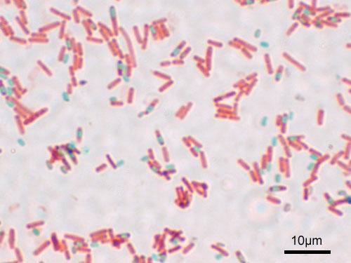 gram negative cell wall diagram xlr mic cable wiring endospore - wikipedia
