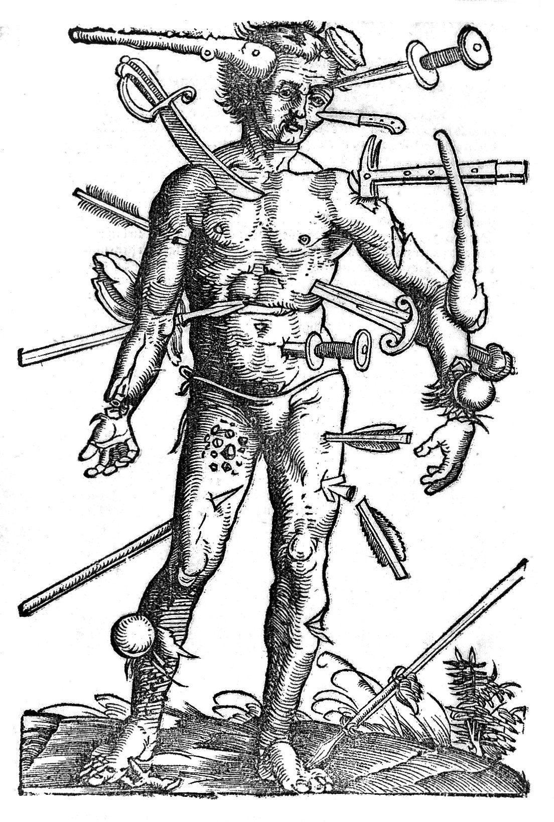 File Wound Man 16th Century Wellcome L