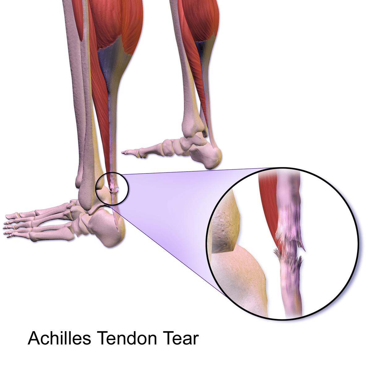 Achilles Torn Tendon Diagram