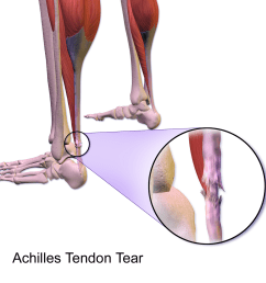 file achilles tendon tear png [ 1200 x 1200 Pixel ]