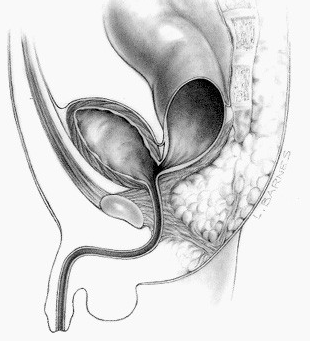 English: Picture of a rectobladder neck fistula