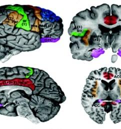 diagram of brain and pain [ 1172 x 792 Pixel ]