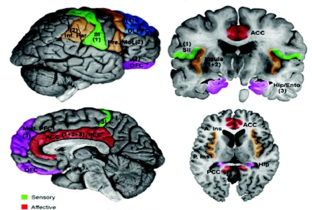 medium resolution of diagram of brain and pain