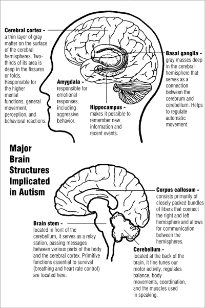 Major brain structures implicated in autism.