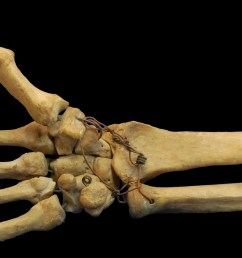 ave skeleton diagram [ 2661 x 1681 Pixel ]
