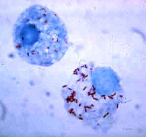File:Rickettsia rickettsii.jpg