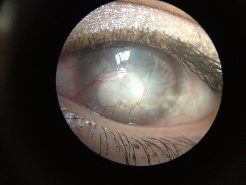 small resolution of diagram corneal ulcer