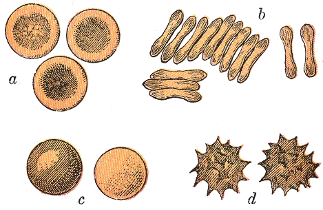 Human red blood cells. a. Seen from the surface. b. Seen in profile and forming rouleaux. c. Rendered spherical by water (hypotonic to serum). d. Rendered crenate by salt solution