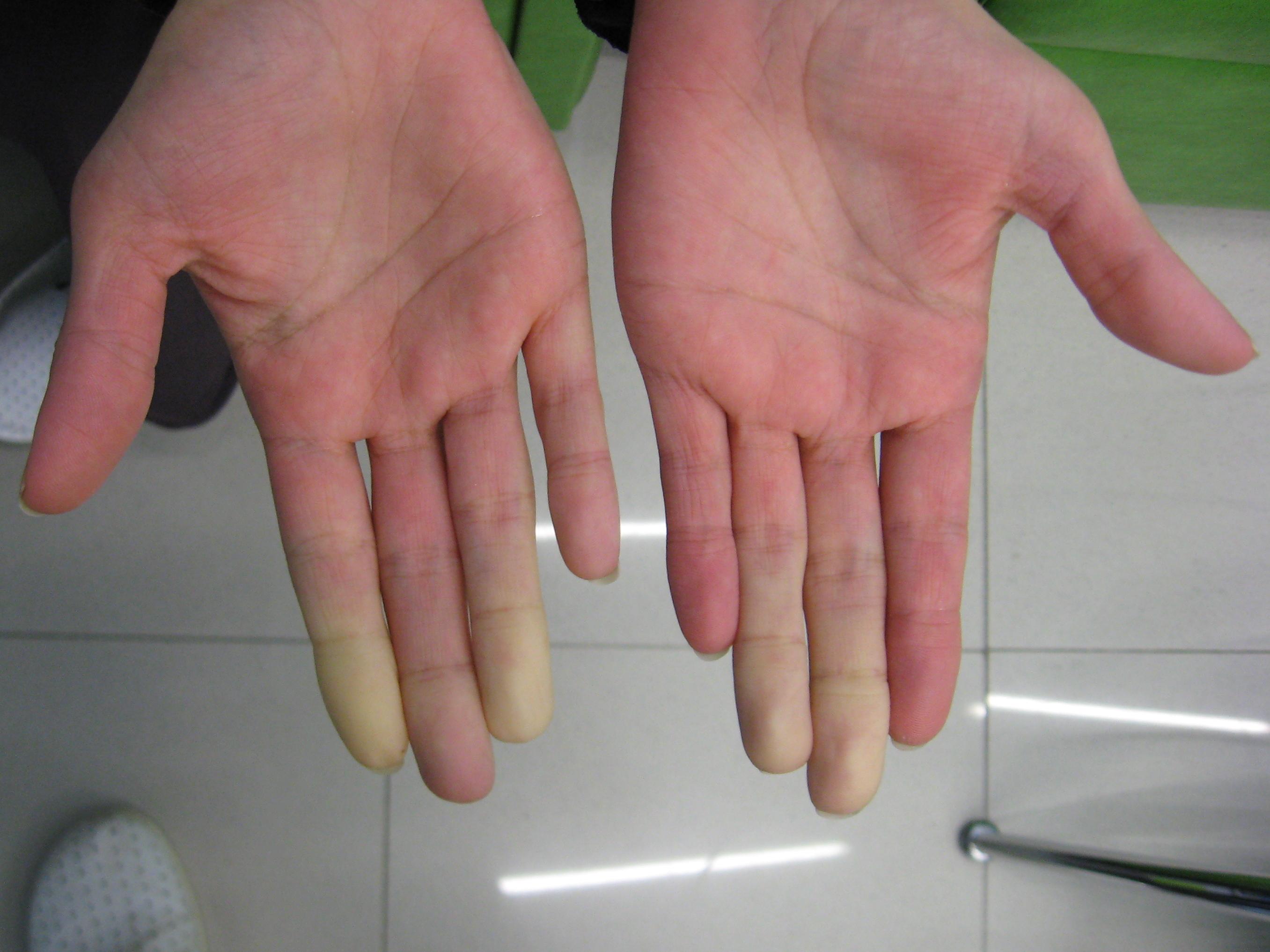 Archivo:Secondary Raynaud's in Sjögren's syndrome 1.JPG ...