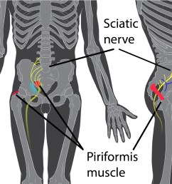 a 2017 study by rimmalapudi and kumar investigated the incidence of sacroiliac si joint dysfunction being diagnosed in patients after undergoing lumbar  [ 2075 x 1403 Pixel ]