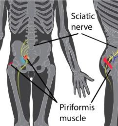 diagram of leg pain [ 2075 x 1403 Pixel ]