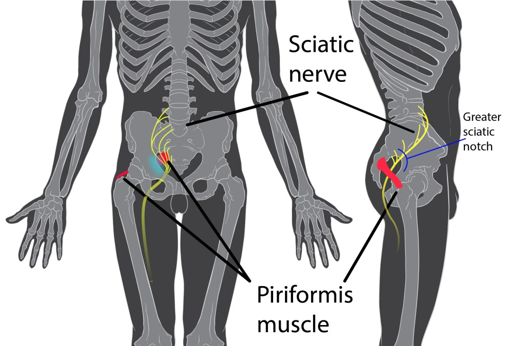 medium resolution of a 2017 study by rimmalapudi and kumar investigated the incidence of sacroiliac si joint dysfunction being diagnosed in patients after undergoing lumbar