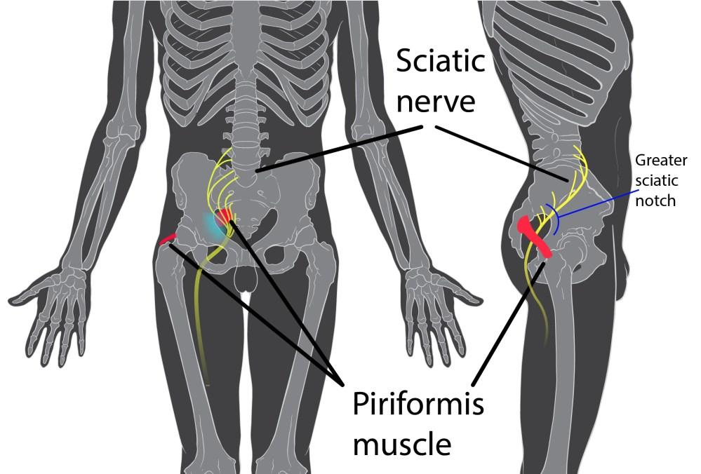 medium resolution of diagram of leg pain