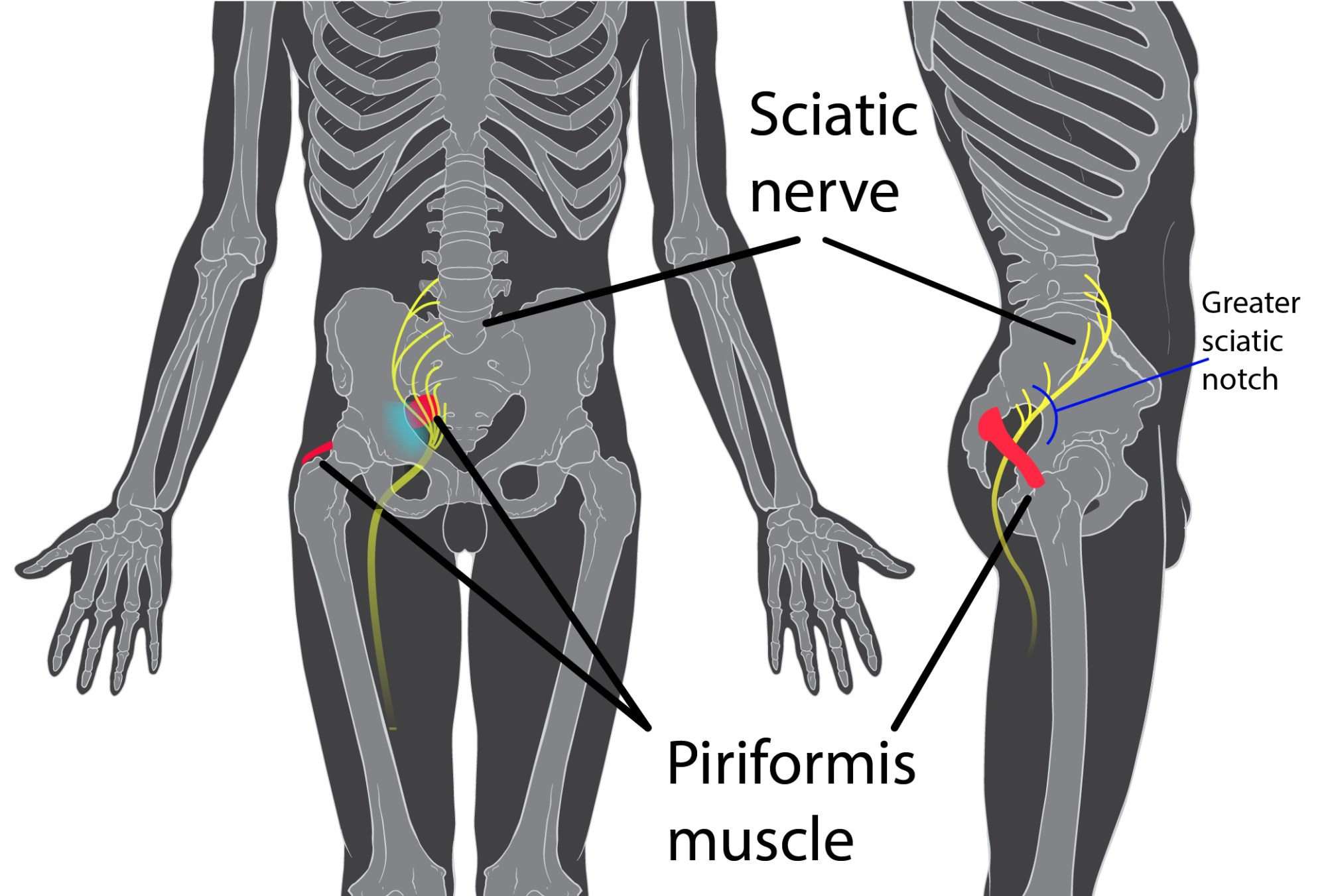 hight resolution of a 2017 study by rimmalapudi and kumar investigated the incidence of sacroiliac si joint dysfunction being diagnosed in patients after undergoing lumbar