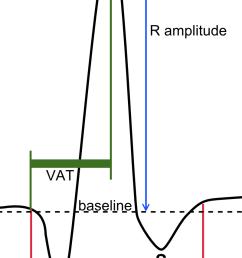 normal ekg diagram [ 800 x 1443 Pixel ]