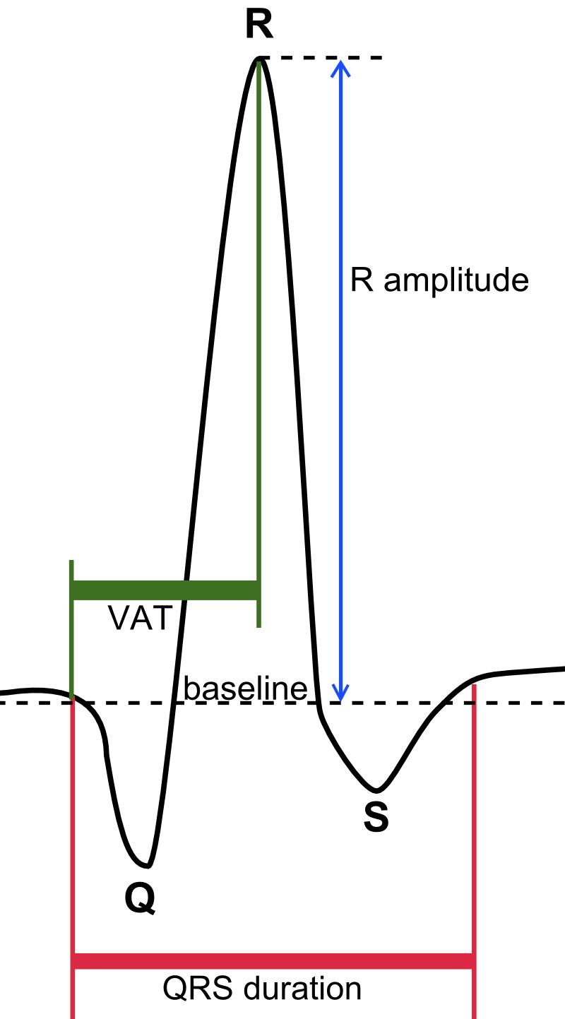 medium resolution of normal ekg diagram