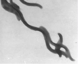 File:Magnetospirilli with magnetosome chains faintly visible.jpg