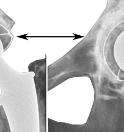acetabular inclination is normally between 30 and 50 a larger angle increases the risk of dislocation  [ 1523 x 684 Pixel ]